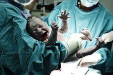Odpowiedzialność za szkody przy porodzie