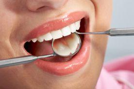 Zdrowie jamy ustnej – sprawa priorytetowa
